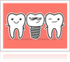 Reasons to Choose Dental Implants