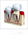 Things to learn about dental crowns